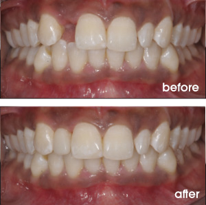 Missing Front Tooth Before and After