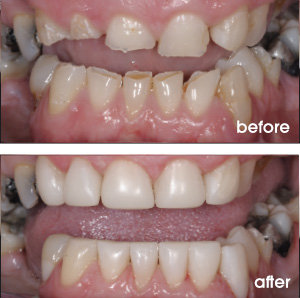 Severely Worn Down Teeth Before and After