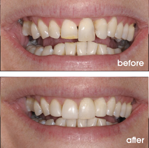 Gummy and Uneven Smile Before and After