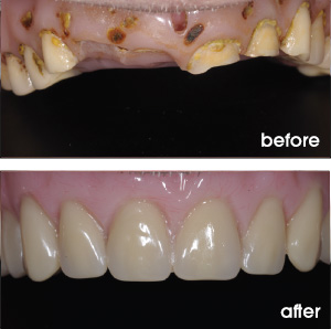 Worn and Old Denture Before and After
