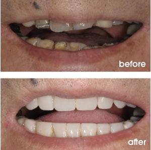 Worn and Dark Teeth Before and After