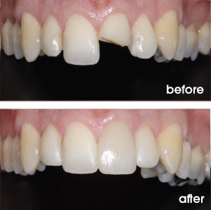 Broken Tooth Before and After