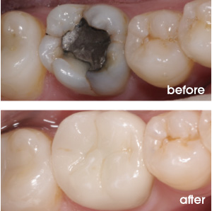 Cracked Back Tooth Before and After