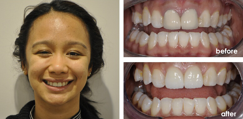 Before And After Full Mouth Dental Implants The Point Dental