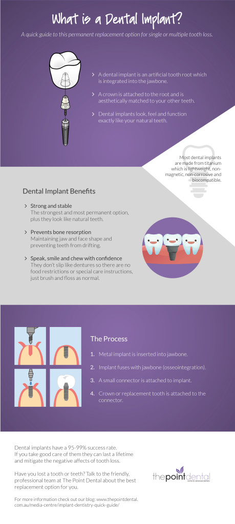 ImplantDentistryInfographic