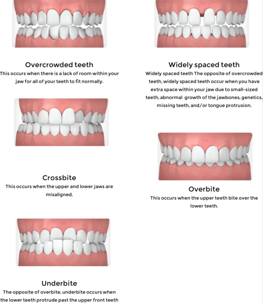 different types of teeth problems