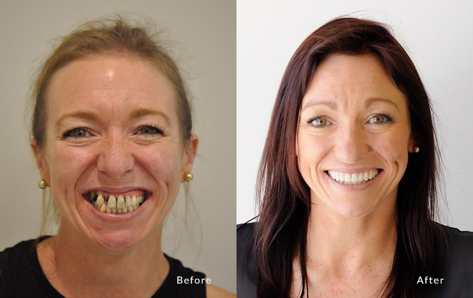 before and after of woman getting All on 4 implants
