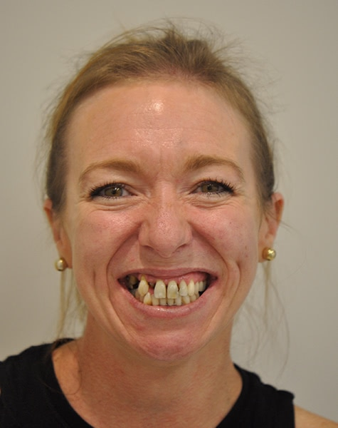 woman smiling before All on 4 dental implants