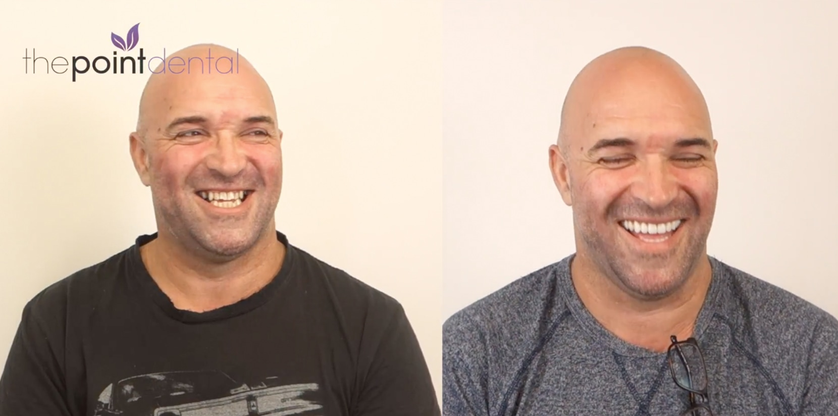 Anthony's Dental Patient Video Journey with The Point Dental
