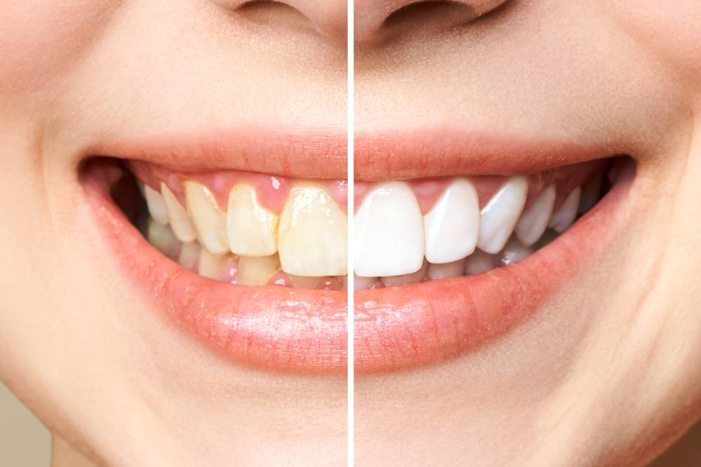 Dental-whitening-woman-smiling